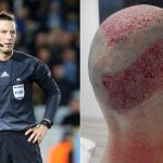 Árbitro inglés se somete a impactante trasplante de pelo