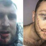 La herida de un «hooligan» del Everton tras una pelea con ultras del Millwall (VÍDEO)
