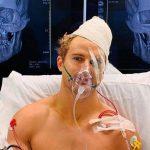 Impactante nocaut deja a un luchador de MMA con ocho fracturas en la cara (VÍDEO)